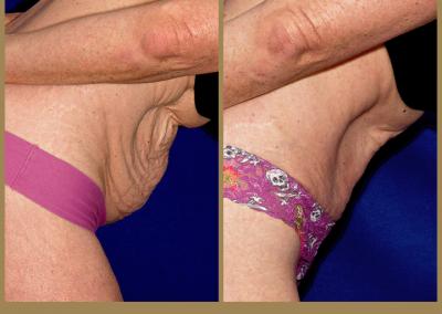 60 year old female-Abdominoplasty