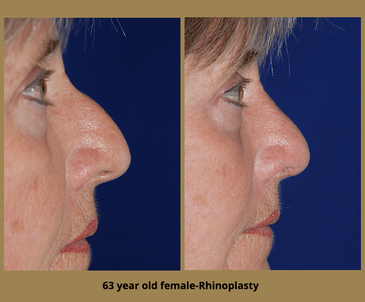 Rhinoplasty Surgery in Tampa Bay | Egozi Plastic Surgery Center