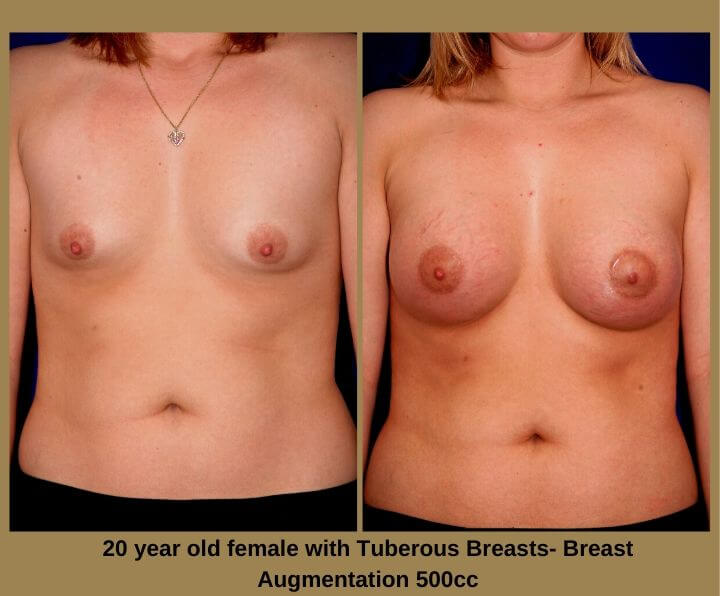 Breast Augmentation Before & After Tampa, FL by Dr. Egozi | 20 Years Old Female 500cc from Egozi Plastic Surgery