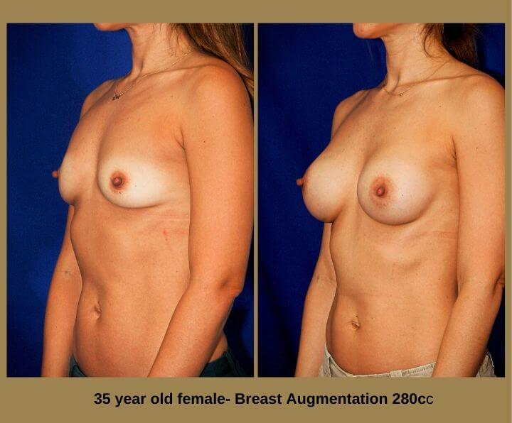 Breast Augmentation Before & After Tampa, FL by Dr. Egozi | 35 Years Old Female 280cc from Egozi Plastic Surgery