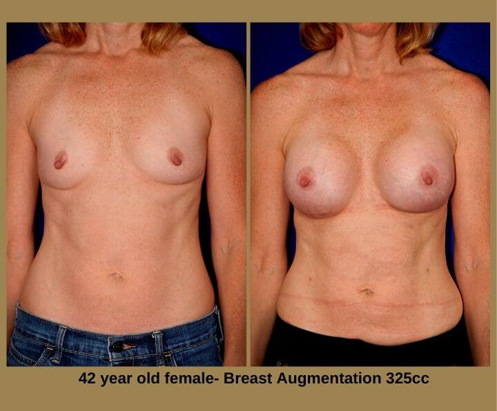 Breast Augmentation Before & After Tampa, FL by Dr. Egozi | 42 Years Old Female 325cc from Egozi Plastic Surgery