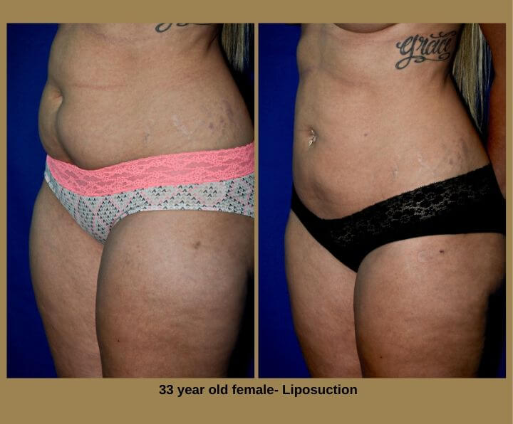 33 year old female- Liposuction
