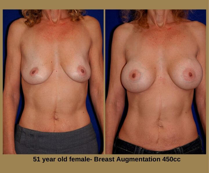 Breast Augmentation Before & After Tampa, Fl | 51 Years Old Female 450cc from Egozi Plastic Surgery