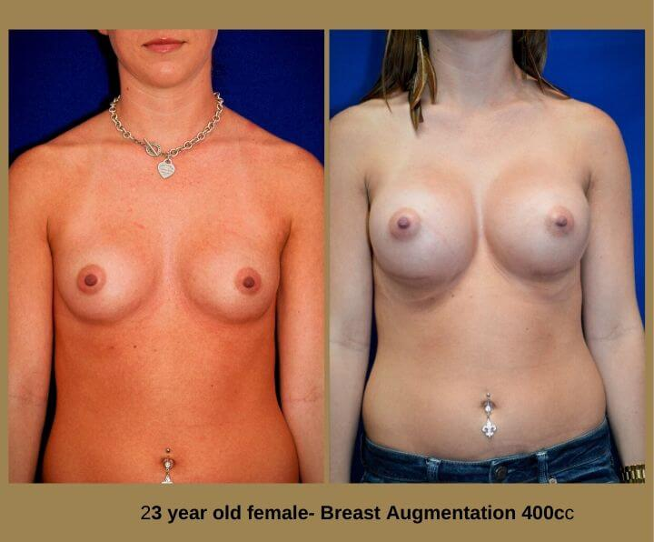 Breast Augmentation Before & After Tampa, FL by Dr. Egozi | 23 Years Old Female 400cc from Egozi Plastic Surgery