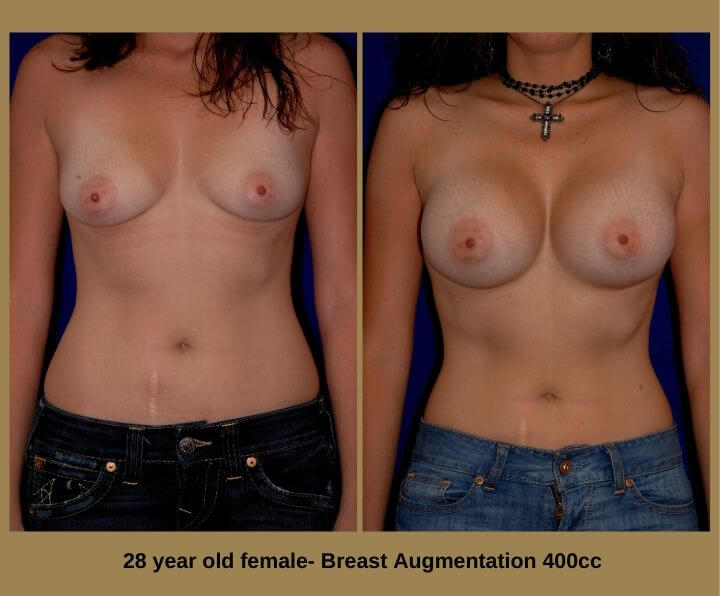 Breast Augmentation Before & After Tampa, FL by Dr. Egozi | 35 Years Old Female 350cc from Egozi Plastic Surgery