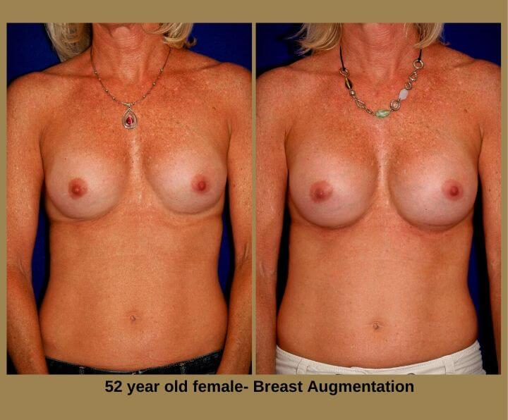 Breast Augmentation Before & After Tampa, Fl | 52 Years Old Female