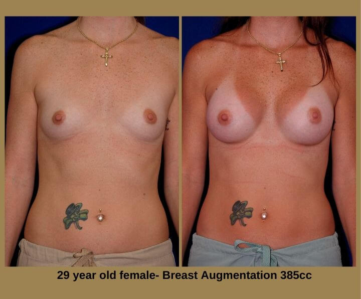 Breast Augmentation Before & After Tampa, FL by Dr. Egozi | 29 Years Old Female 385cc from Egozi Plastic Surgery