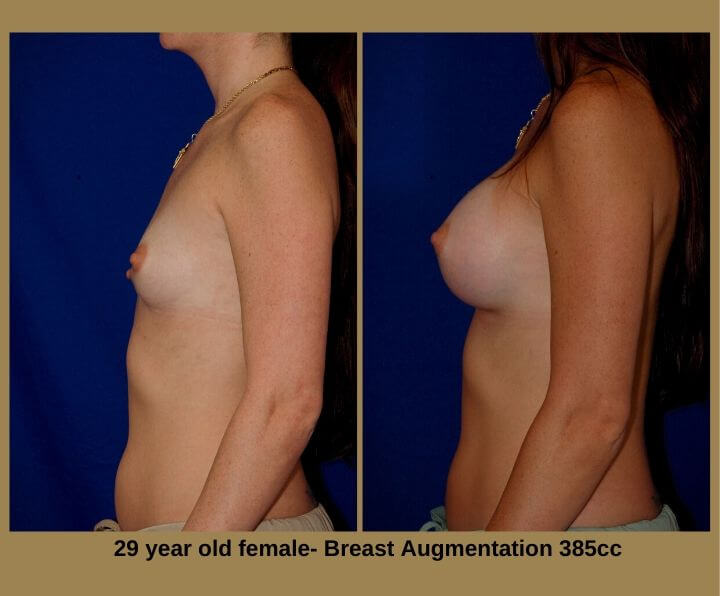 Breast Augmentation Before & After Tampa, Fl | 29 Years Old Female 385cc from Egozi Plastic Surgery