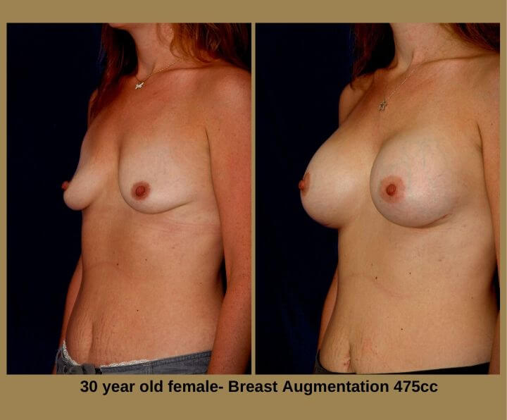 Breast Augmentation Before & After Tampa, FL by Dr. Egozi | 30 Years Old Female 475cc from Egozi Plastic Surgery