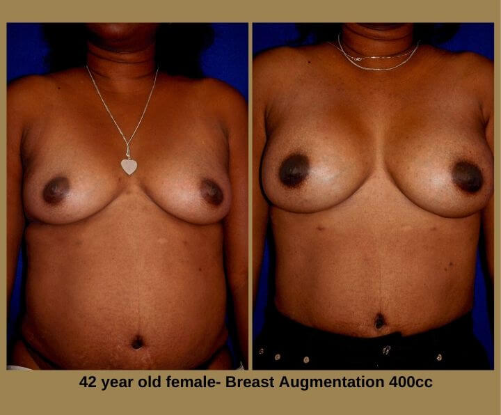 Breast Augmentation Before & After Tampa, Fl | 42 Female 400cc