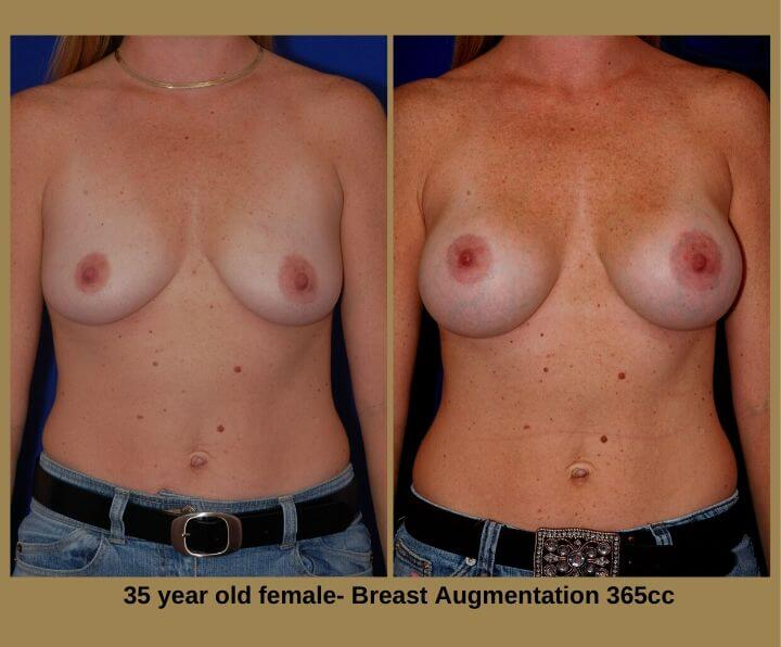 Breast Augmentation Before & After Tampa, FL by Dr. Egozi | 35 Years Old Female 365cc from Egozi Plastic Surgery