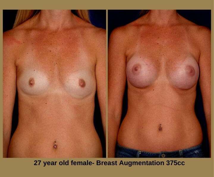 Breast Augmentation Before & After Tampa, FL by Dr. Egozi | 27 Years Old Female 375cc from Egozi Plastic Surgery