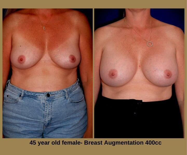 Breast Augmentation Before & After Tampa, Fl | 45 Years Old Female 400cc from Egozi Plastic Surgery