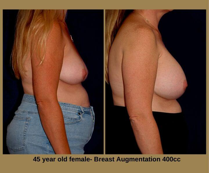 Breast Augmentation Before & After Tampa, Fl | 45 Years Old 400cc from Egozi Plastic Surgery