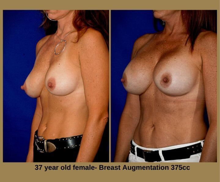Breast Augmentation Before & After Tampa, FL by Dr. Egozi | 37 Years Old Female 375cc from Egozi Plastic Surgery