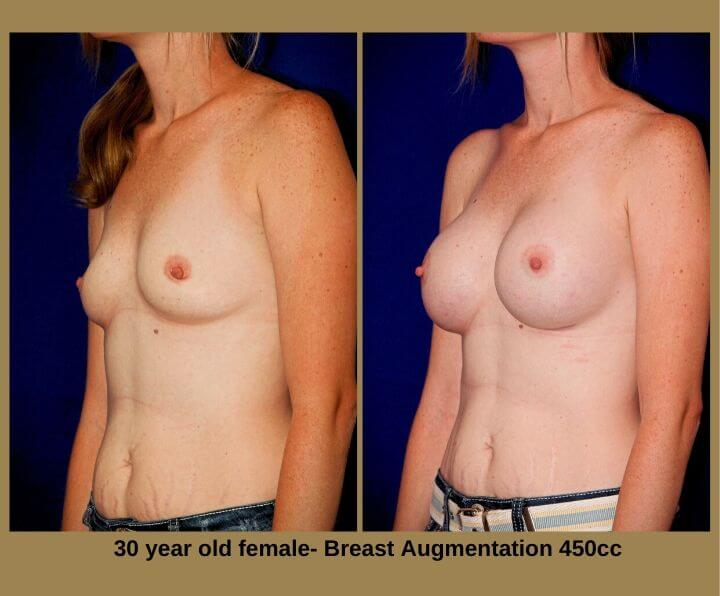 Breast Augmentation Before & After Tampa, Fl | 30 Years Old Female 450cc