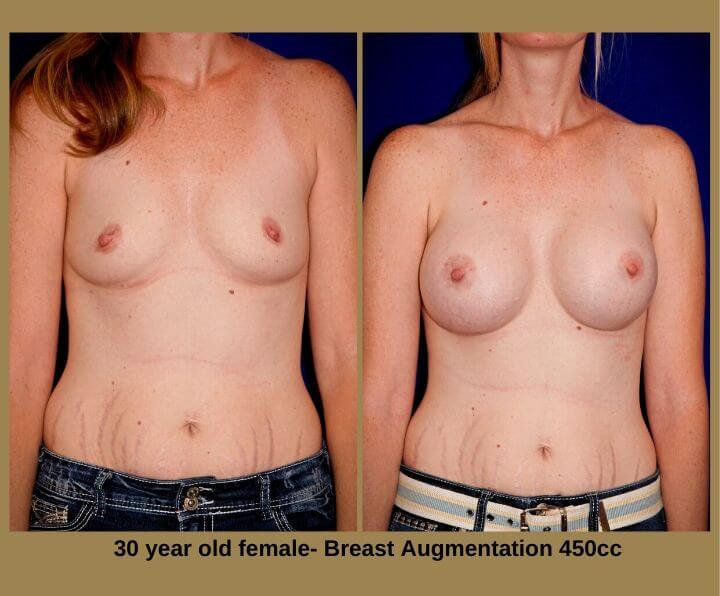 Breast Augmentation Before & After Tampa, Fl | 30 Years Old 450 Cc from Egozi Plastic Surgery