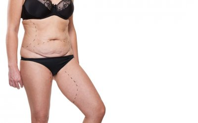 The Best Cosmetic Surgeries for Removing Excess Skin