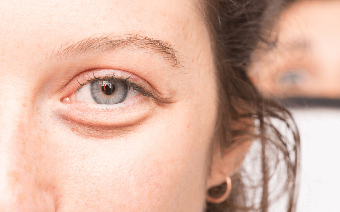 Home Treatments Before You Consider Blepharoplasty