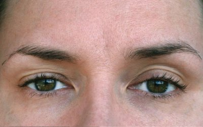 What Are the Causes of Eyelid Ptosis and How to Treat It?