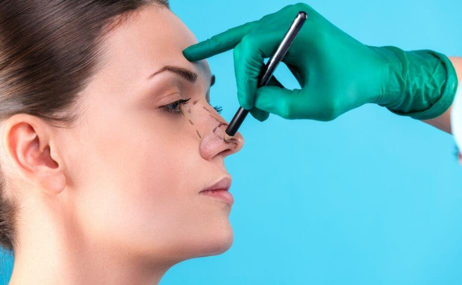 Top 5 Benefits of Rhinoplasty Surgery