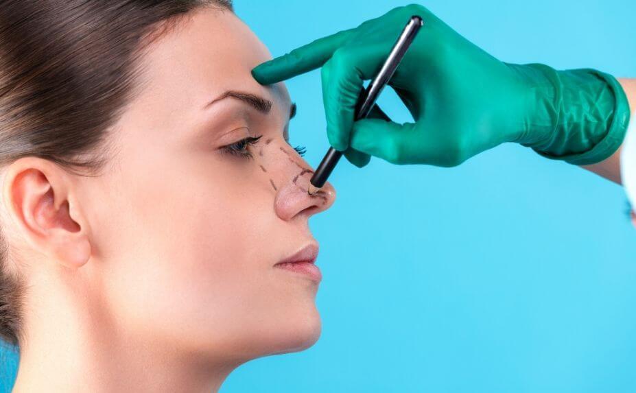 Top 5 Benefits of Rhinoplasty Surgery