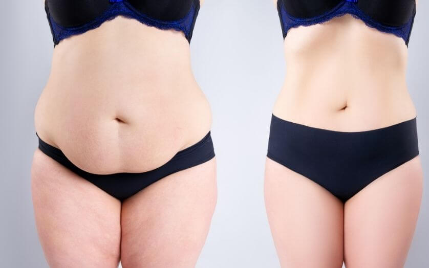 Liposuction Vs Tummy Tuck:  Which One is Good for Me?