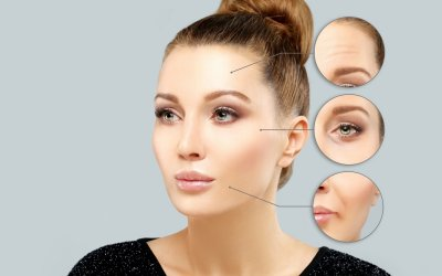 Differences Between Dysport vs Botox